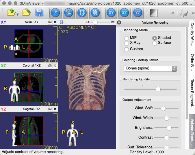 3DimViewer- 3D Viewer of Medical DICOM