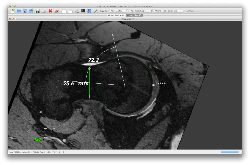 SMILI - Simple Medical Imaging Library Interface